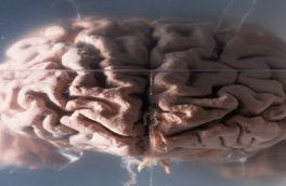 پاسخ به یک سؤال قدیمی: چرا مغز انسان تا این اندازه بزرگ است؟
